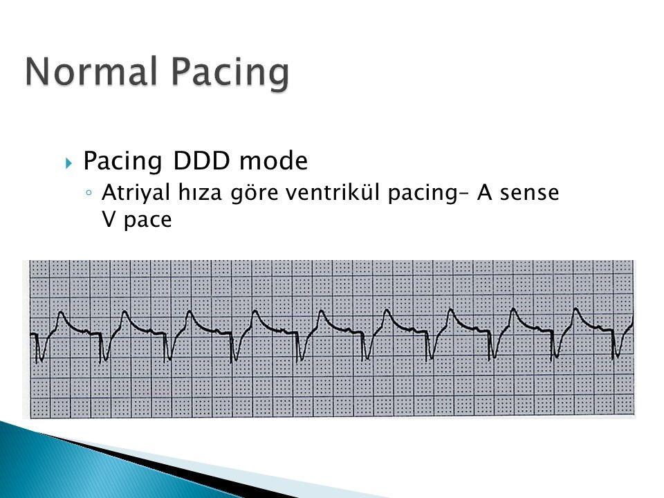 Pacing DDD mode ◦ Atriyal hıza göre ventrikül pacing– A sense V pace