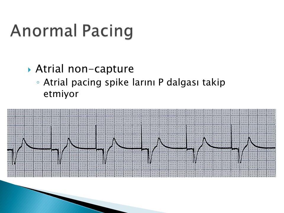  Atrial non-capture ◦ Atrial pacing spike larını P dalgası takip etmiyor
