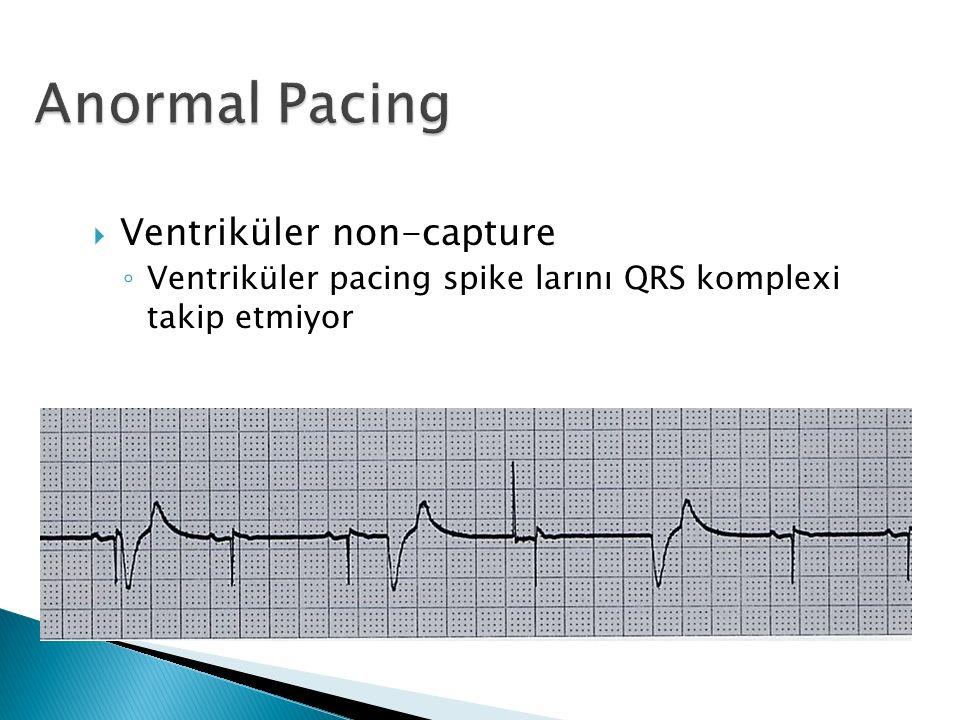  Ventriküler non-capture ◦ Ventriküler pacing spike larını QRS komplexi takip etmiyor