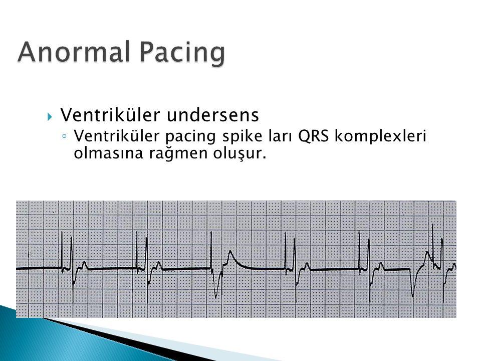  Ventriküler undersens ◦ Ventriküler pacing spike ları QRS komplexleri olmasına rağmen oluşur.