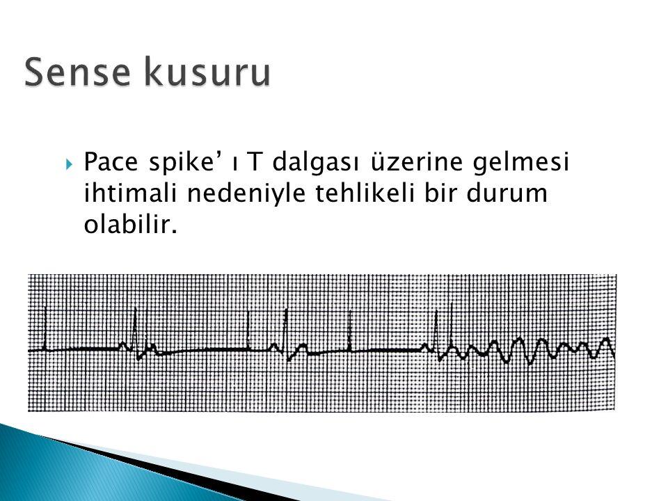  Pace spike' ı T dalgası üzerine gelmesi ihtimali nedeniyle tehlikeli bir durum olabilir.