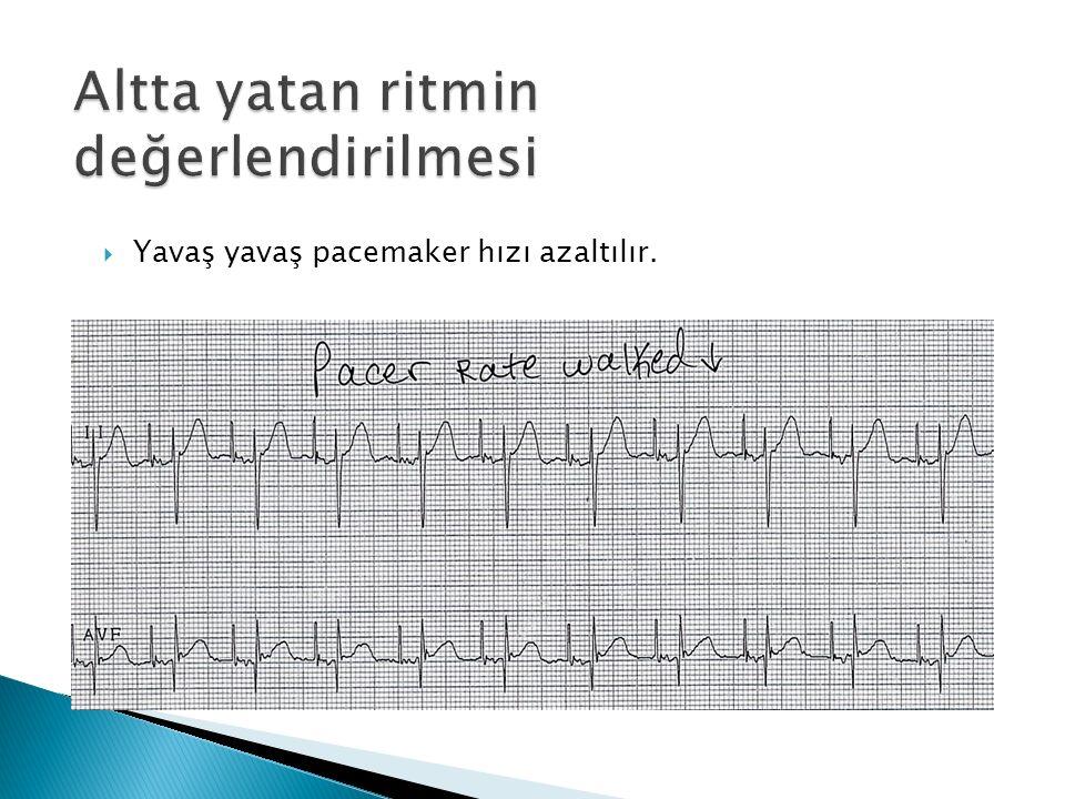  Yavaş yavaş pacemaker hızı azaltılır.