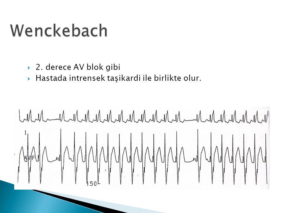  2. derece AV blok gibi  Hastada intrensek taşikardi ile birlikte olur.