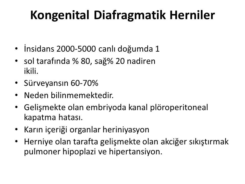 Kongenital Diafragmatik Herniler İnsidans 2000-5000 canlı doğumda 1 sol tarafında % 80, sağ% 20 nadiren ikili. Sürveyansın 60-70% Neden bilinmemektedi