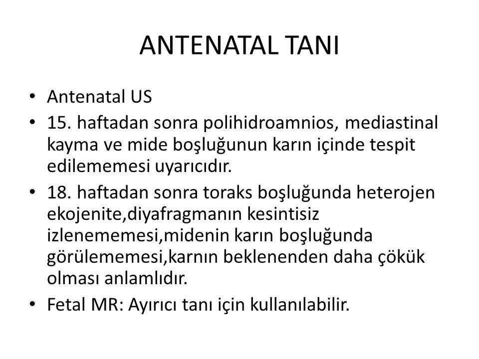 ANTENATAL TANI Antenatal US 15. haftadan sonra polihidroamnios, mediastinal kayma ve mide boşluğunun karın içinde tespit edilememesi uyarıcıdır. 18. h