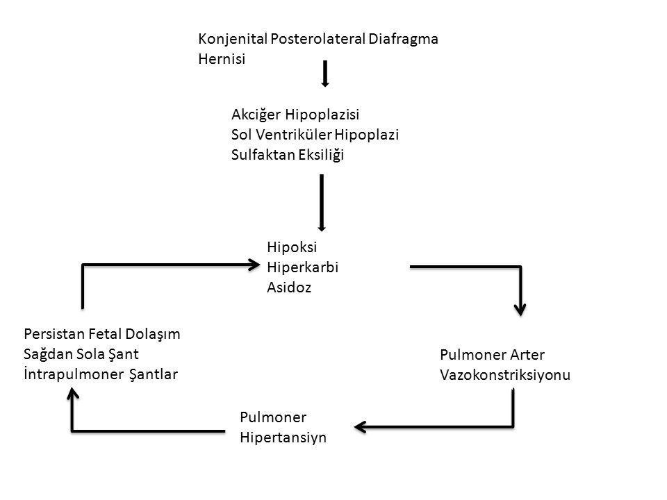 Konjenital Posterolateral Diafragma Hernisi Akciğer Hipoplazisi Sol Ventriküler Hipoplazi Sulfaktan Eksiliği Hipoksi Hiperkarbi Asidoz Pulmoner Arter