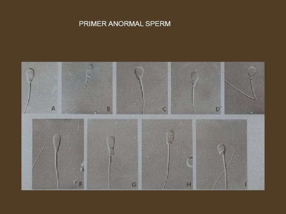 PRIMER ANORMAL SPERM