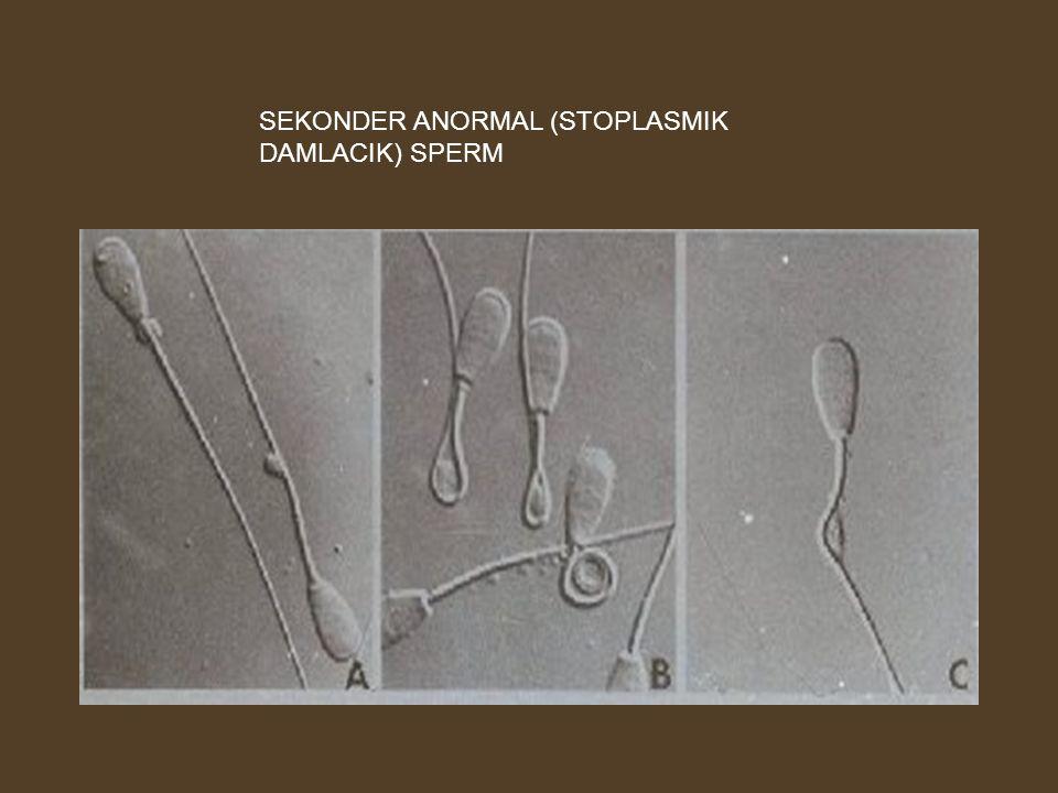 SEKONDER ANORMAL (STOPLASMIK DAMLACIK) SPERM