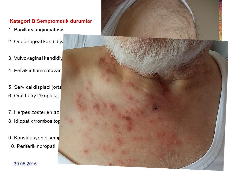 30.05.201634 Kategori B Semptomatik durumlar 1. Bacillary angiomatosis 2. Orofaringeal kandidiyaz (thrush) 3. Vulvovaginal kandidiyaz, persistan veya