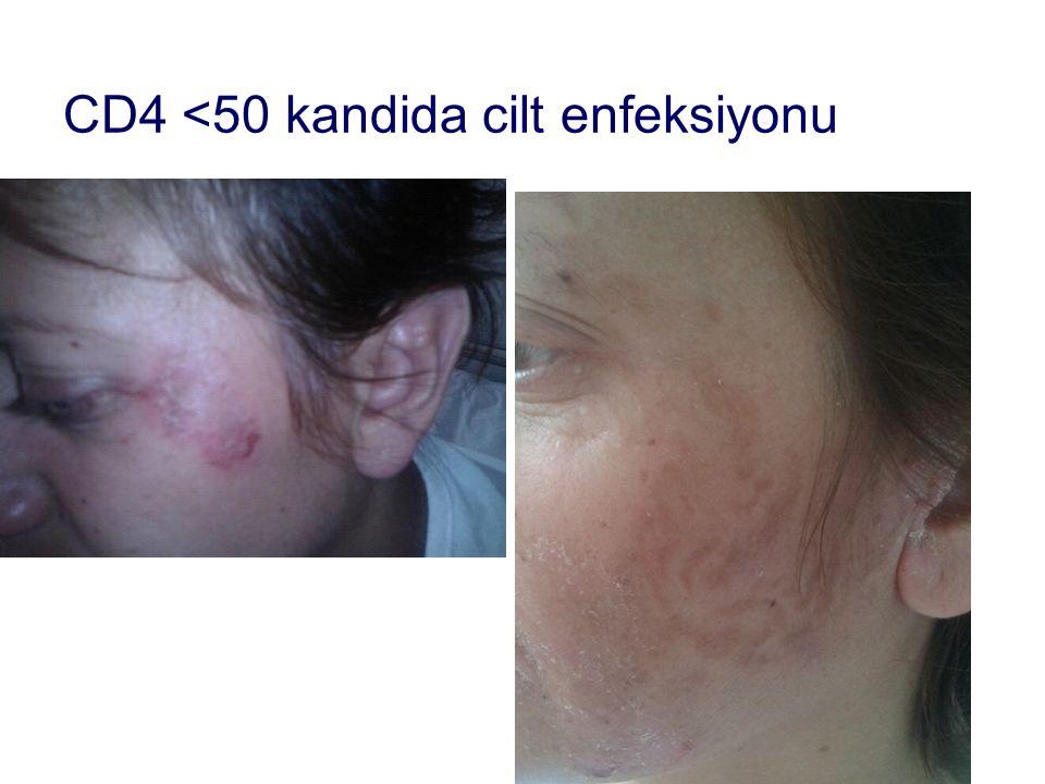 CD4 <50 kandida cilt enfeksiyonu