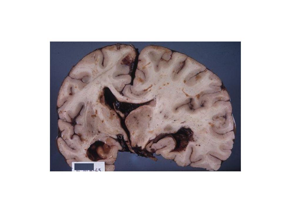 KOMA Unkal herniasyon; Bilateral deserebre postür Dekortike postür nadir Orta beynin baskılanması ile pupiller orta hatta yaklaşık 5-6 mm çapa ulaşırlar ve ışığa duyarsız hale gelirler.