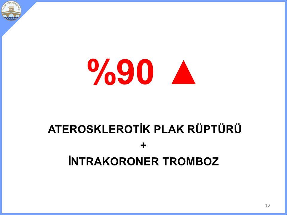 %90 ▲ ATEROSKLEROTİK PLAK RÜPTÜRÜ + İNTRAKORONER TROMBOZ 13