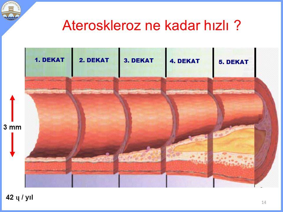 Ateroskleroz ne kadar hızlı ? 14 3 mm 42 ɥ / yıl