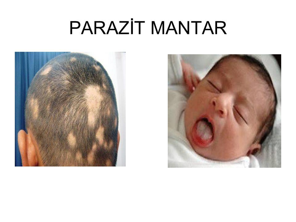 PARAZİT MANTAR Saçkıran Pamukçuk