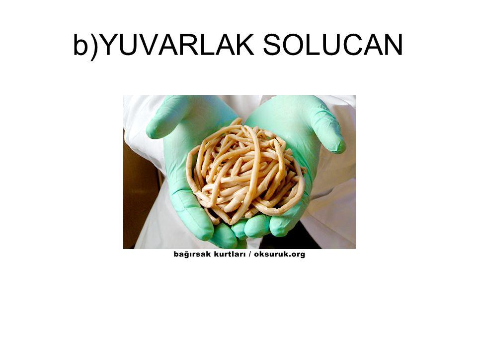 b)YUVARLAK SOLUCAN