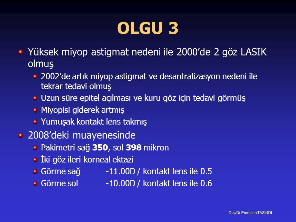 OLGU 3 Yüksek miyop astigmat nedeni ile 2000'de 2 göz LASIK olmuş 2002'de artık miyop astigmat ve desantralizasyon nedeni ile tekrar tedavi olmuş Uzun süre epitel açılması ve kuru göz için tedavi görmüş Miyopisi giderek artmış Yumuşak kontakt lens takmış 2008'deki muayenesinde Pakimetri sağ 350, sol 398 mikron İki göz ileri korneal ektazi Görme sağ-11.00D / kontakt lens ile 0.5 Görme sol-10.00D / kontakt lens ile 0.6 Doç.Dr.Emrullah TASINDI