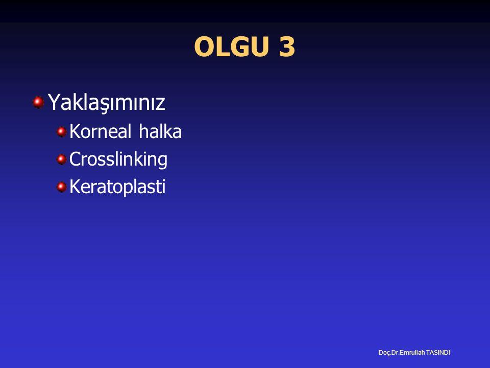 OLGU 3 Yaklaşımınız Korneal halka Crosslinking Keratoplasti Doç.Dr.Emrullah TASINDI