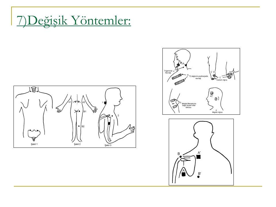 7)Değişik Yöntemler:
