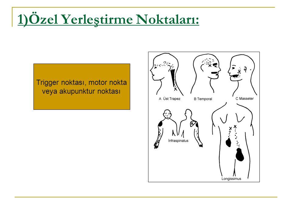 1)Özel Yerleştirme Noktaları: Trigger noktası, motor nokta veya akupunktur noktası