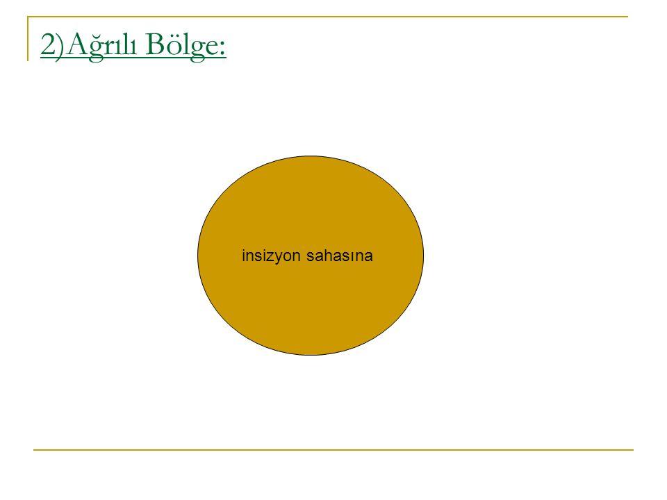 2)Ağrılı Bölge: insizyon sahasına