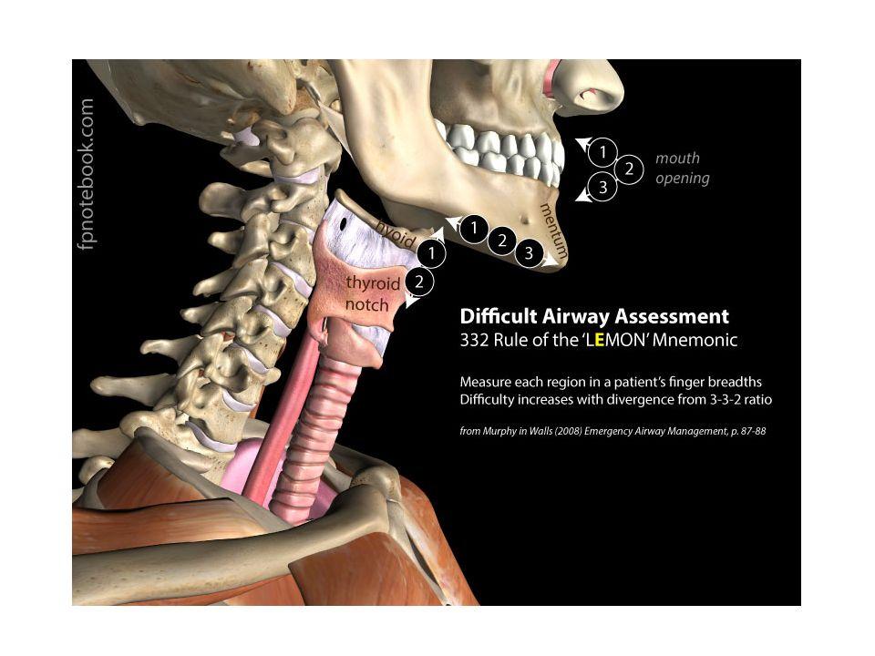 TEKNİK Laringoskop epiglot görülenedek ilerletilir –Eğil blade valleculaya, düz blade epiglot altına yerleştirilir Yukarı ve hafif ileri hareketle kordlar görünür hale gelir (dişlere dikkat) Gözler ayrılmadan tüp sağ elle alınıp yerleştirilir Laringoskop ve stile çıkartılır Oksijenizasyona başlanır