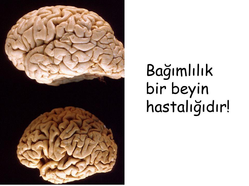 Bağımlılık bir beyin hastalığıdır!