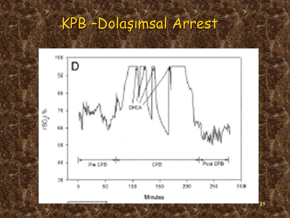 35 KPB –Dolaşımsal Arrest