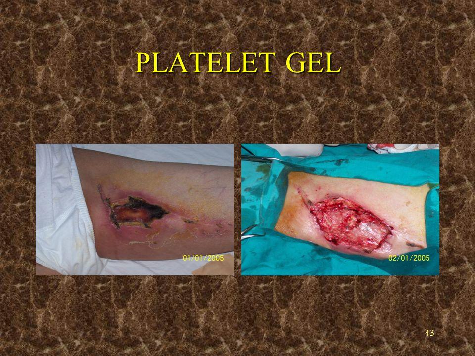 43 PLATELET GEL