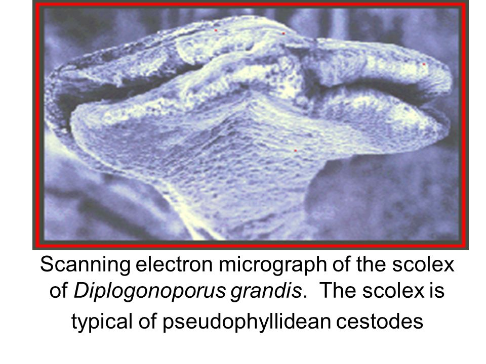 Scanning electron micrograph of the scolex of Diplogonoporus grandis. The scolex is typical of pseudophyllidean cestodes