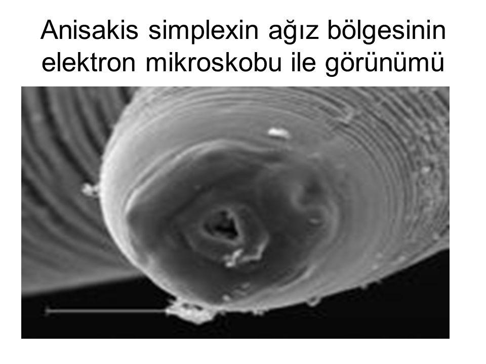 Anisakis simplexin ağız bölgesinin elektron mikroskobu ile görünümü