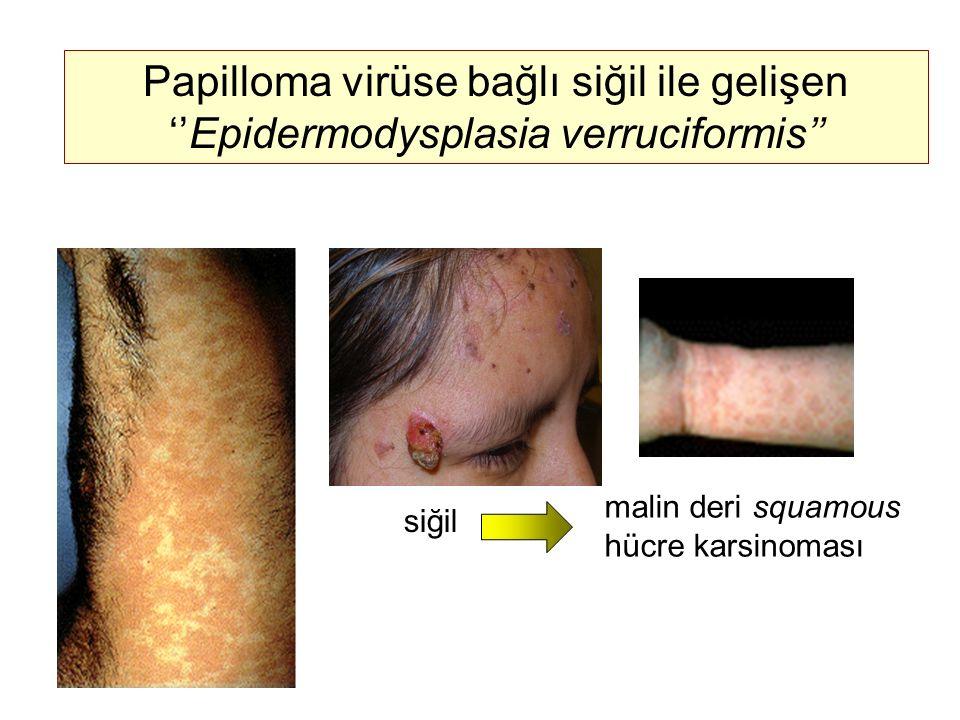 Papilloma virüse bağlı siğil ile gelişen ''Epidermodysplasia verruciformis'' siğil malin deri squamous hücre karsinoması