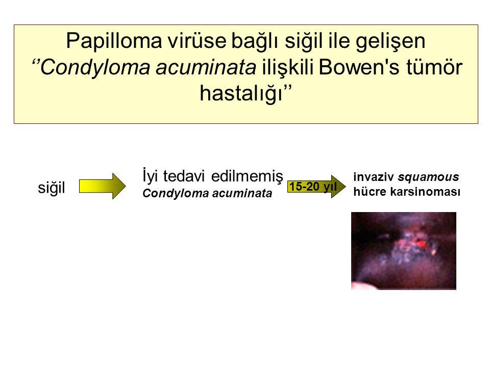 Papilloma virüse bağlı siğil ile gelişen ''Condyloma acuminata ilişkili Bowen's tümör hastalığı'' siğil İyi tedavi edilmemiş Condyloma acuminata invaz