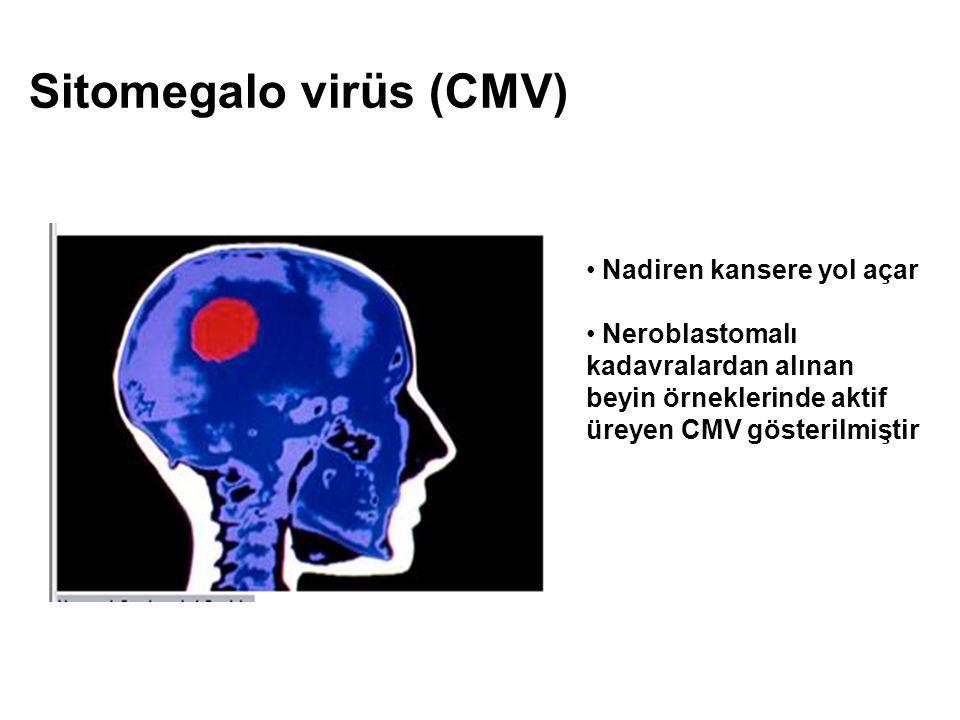 Sitomegalo virüs (CMV) Nadiren kansere yol açar Neroblastomalı kadavralardan alınan beyin örneklerinde aktif üreyen CMV gösterilmiştir