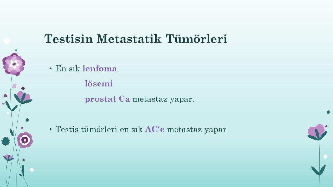Testisin Metastatik Tümörleri En sık lenfoma lösemi prostat Ca metastaz yapar. Testis tümörleri en sık AC'e metastaz yapar