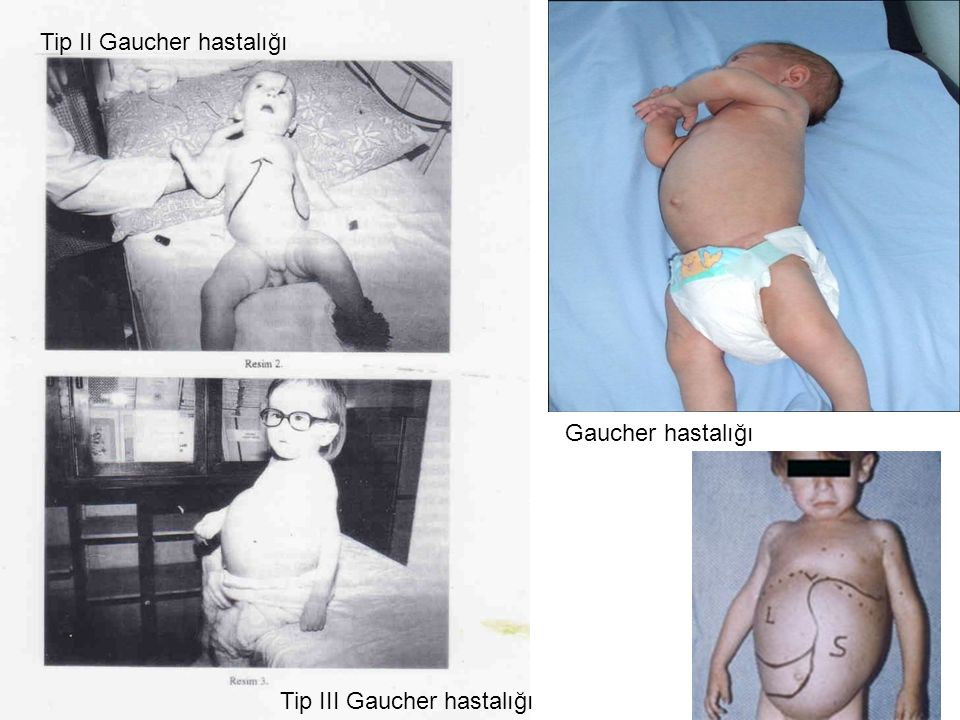 Gaucher hastalığı Tip II Gaucher hastalığı Tip III Gaucher hastalığı
