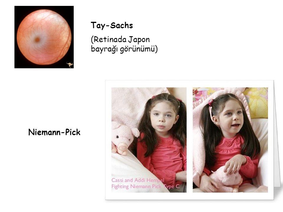 Tay-Sachs (Retinada Japon bayrağı görünümü) Niemann-Pick