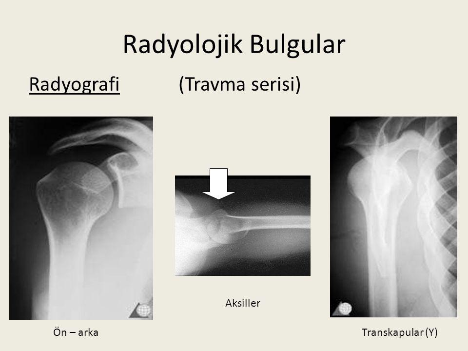 Radyolojik Bulgular Radyografi (Travma serisi) Ön – arkaTranskapular (Y) Aksiller