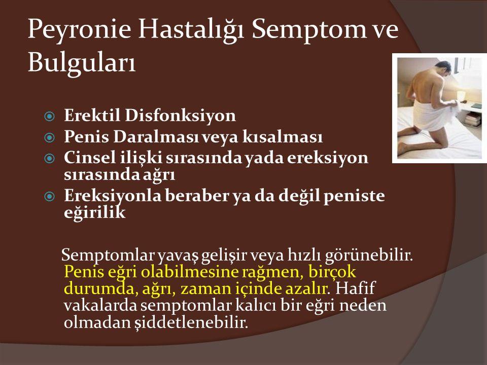 Peyronie Hastalığı Semptom ve Bulguları  Erektil Disfonksiyon  Penis Daralması veya kısalması  Cinsel ilişki sırasında yada ereksiyon sırasında ağr