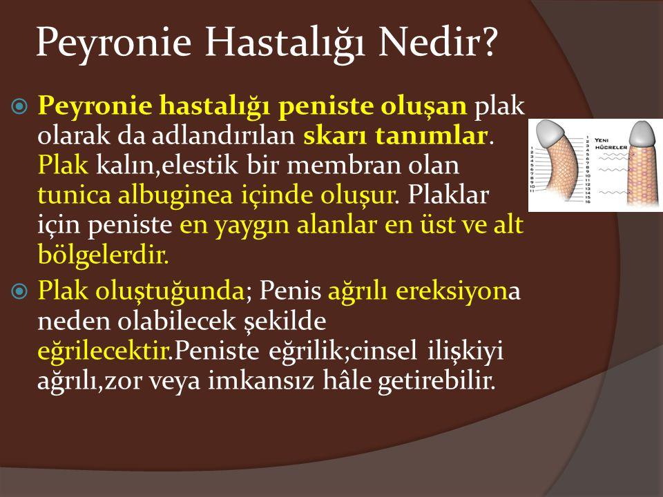 Peyronie Hastalığı Nedir?  Peyronie hastalığı peniste oluşan plak olarak da adlandırılan skarı tanımlar. Plak kalın,elestik bir membran olan tunica a