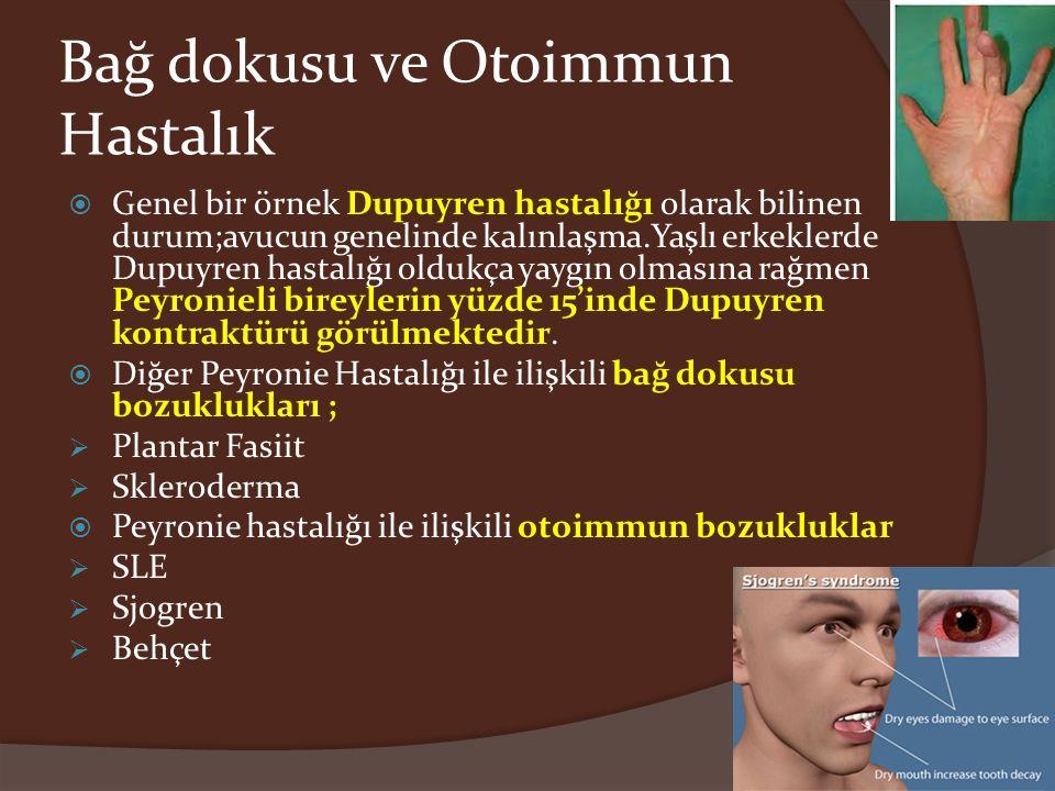 Bağ dokusu ve Otoimmun Hastalık  Genel bir örnek Dupuyren hastalığı olarak bilinen durum;avucun genelinde kalınlaşma.Yaşlı erkeklerde Dupuyren hastal