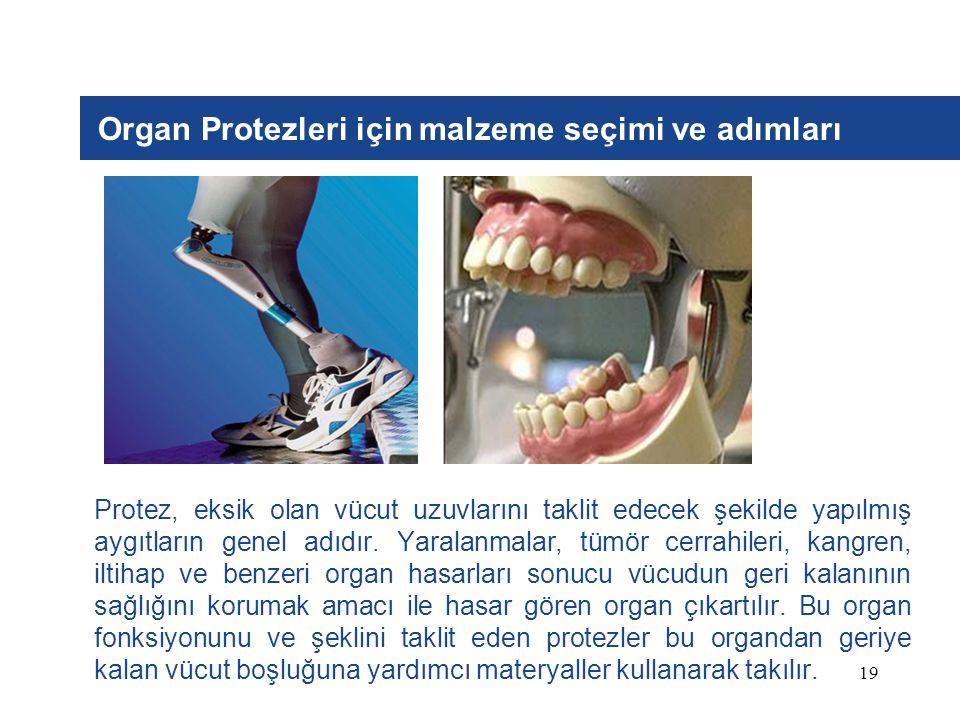 19 Organ Protezleri için malzeme seçimi ve adımları Protez, eksik olan vücut uzuvlarını taklit edecek şekilde yapılmış aygıtların genel adıdır. Yarala