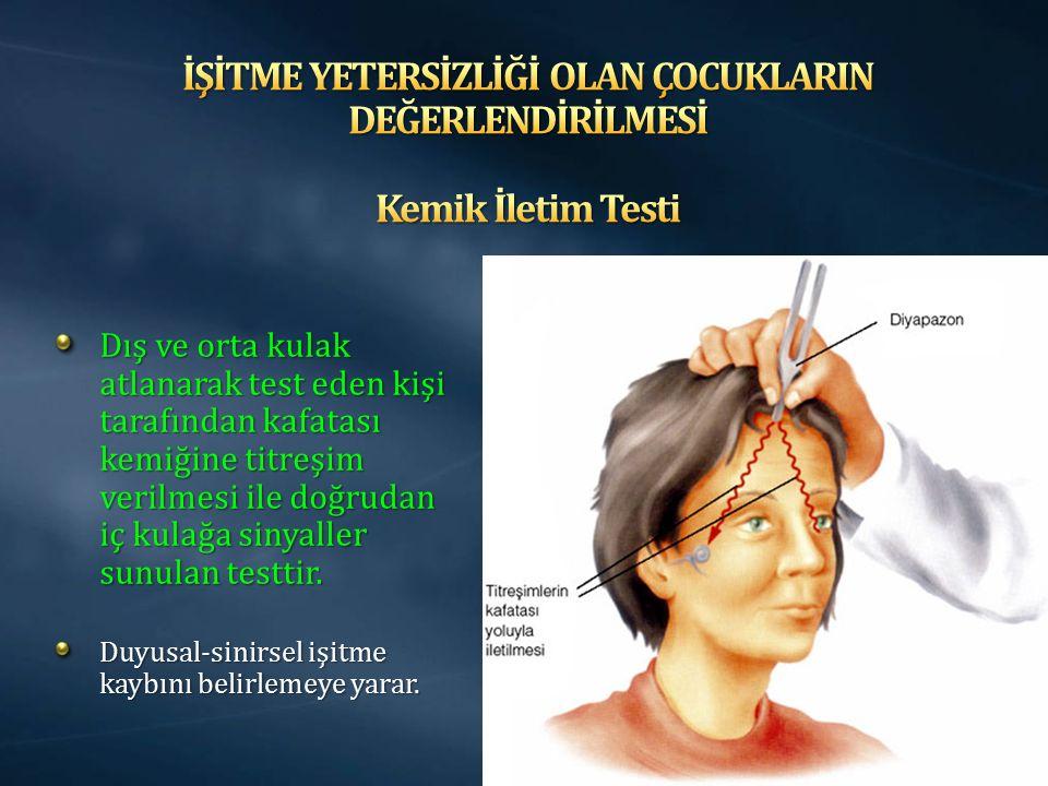 Dış ve orta kulak atlanarak test eden kişi tarafından kafatası kemiğine titreşim verilmesi ile doğrudan iç kulağa sinyaller sunulan testtir. Duyusal-s