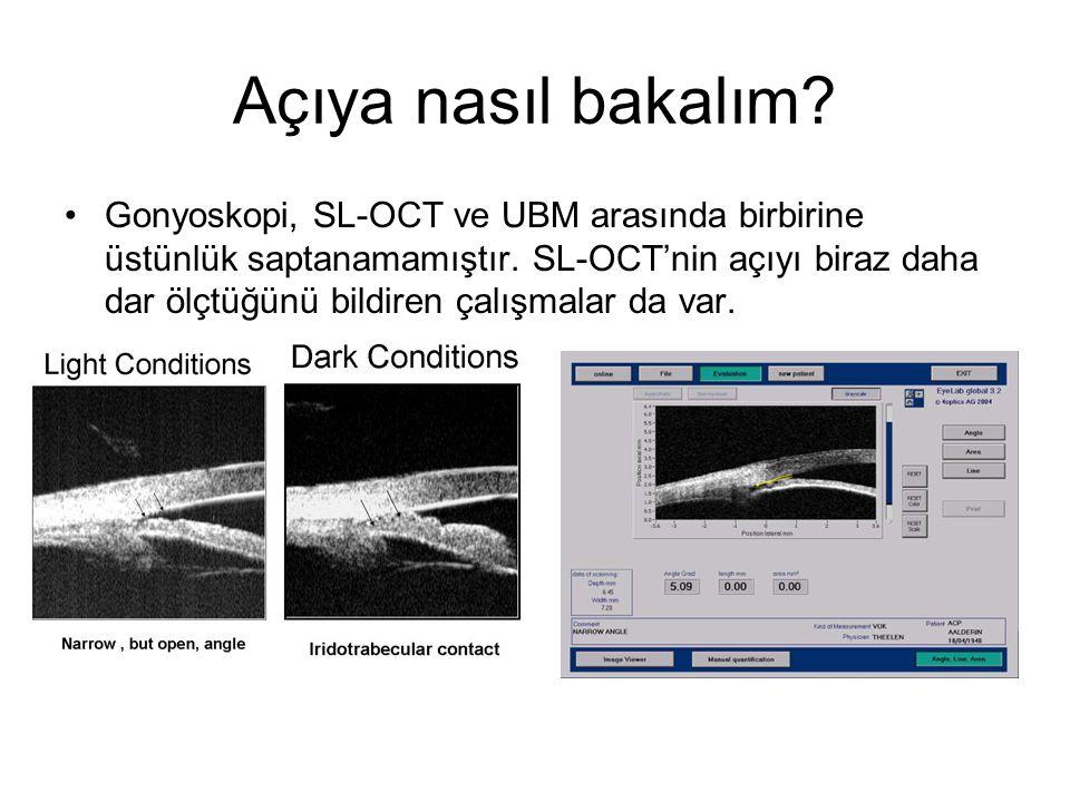 Açıya nasıl bakalım. Gonyoskopi, SL-OCT ve UBM arasında birbirine üstünlük saptanamamıştır.