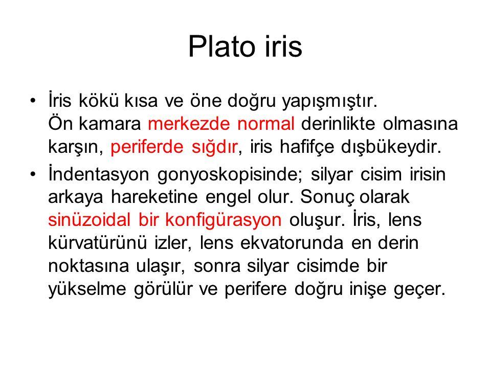 Plato iris İris kökü kısa ve öne doğru yapışmıştır.
