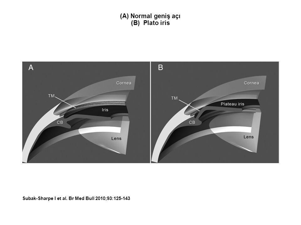 (A) Normal geniş açı (B) Plato iris Subak-Sharpe I et al. Br Med Bull 2010;93:125-143