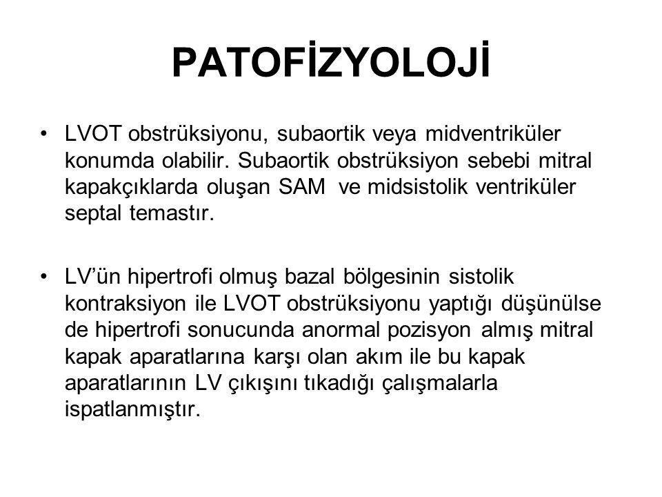 LVOT obstrüksiyonu, subaortik veya midventriküler konumda olabilir.