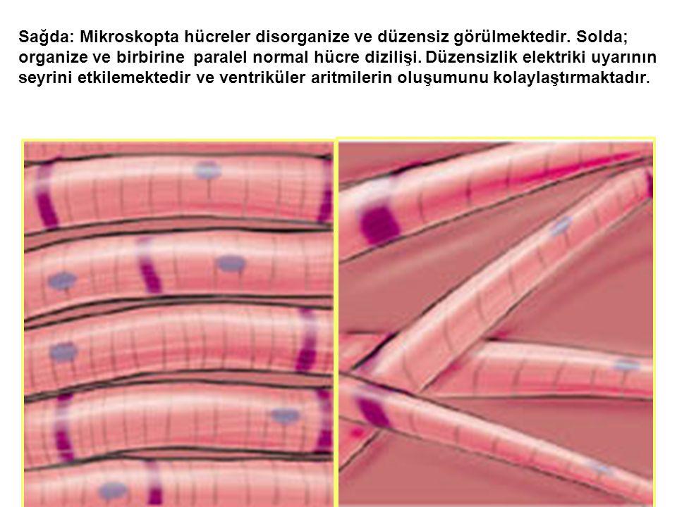 Sağda: Mikroskopta hücreler disorganize ve düzensiz görülmektedir.