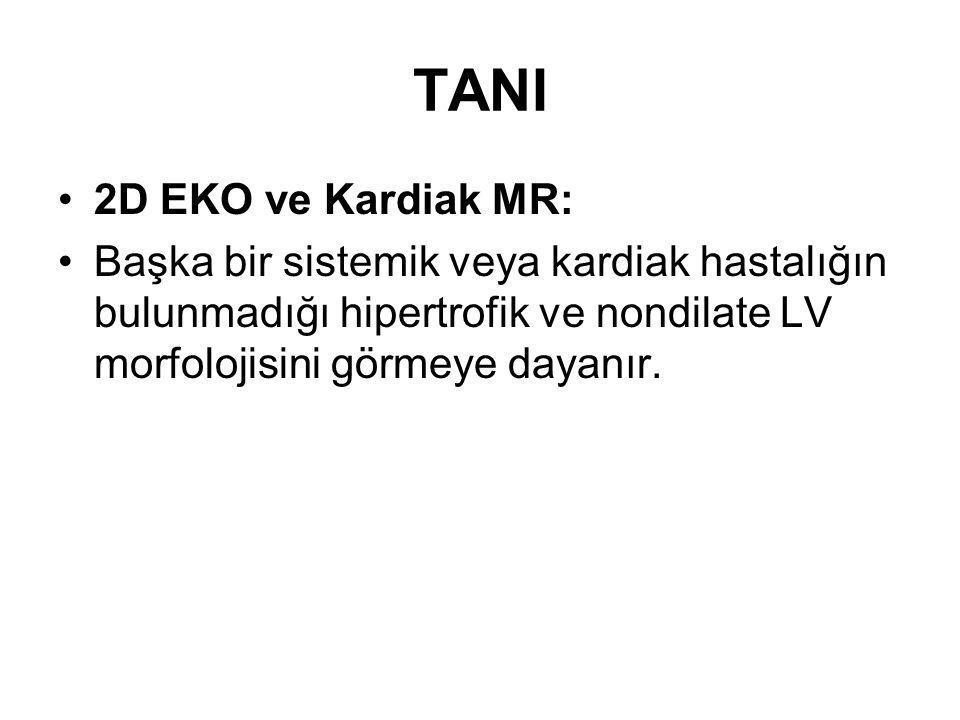 TANI 2D EKO ve Kardiak MR: Başka bir sistemik veya kardiak hastalığın bulunmadığı hipertrofik ve nondilate LV morfolojisini görmeye dayanır.