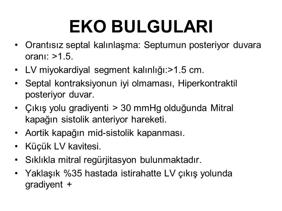 EKO BULGULARI Orantısız septal kalınlaşma: Septumun posteriyor duvara oranı: >1.5.