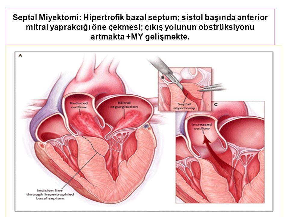 Septal Miyektomi: Hipertrofik bazal septum; sistol başında anterior mitral yaprakcığı öne çekmesi; çıkış yolunun obstrüksiyonu artmakta +MY gelişmekte.